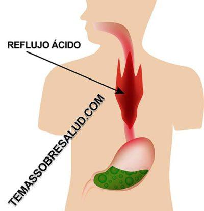 mucosidad Problemas debido al insuficiente ácido del estómago