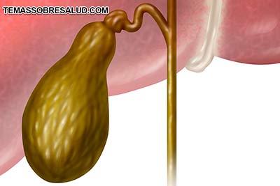 Vesícula biliar y las hormonas sexuales: dominancia del Estrógeno progesterona