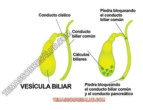 La eliminación de la vesícula biliar causa problemas metabólicos y digestivos con las grasas
