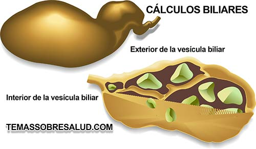 colelitiasis en forma dispéptica