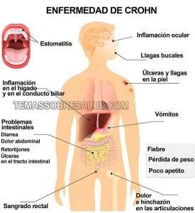 Equilibrar la microbiota intestinal en personas que sufren la enfermedad de Crohn