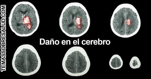música afecta al cerebro - Emoción