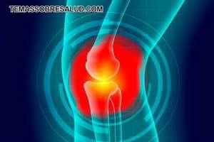 Los síntomas de la artritis reumatoide mejoran con la actividad física