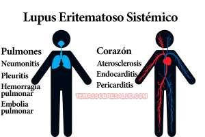 fibromialgia una enfermedad autoinmune - artritis reumatoide o lupus