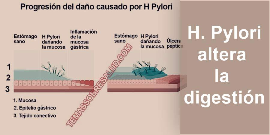 infecciones por H Pylori - retortijones