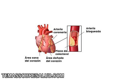 infarto de miocardio con elevación del segmento ST (IAMCEST)