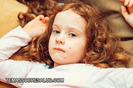 Hematomas y sangrado niña con granos en la cara