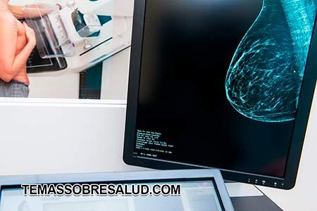 problemas en los senos - mamografías regularmente mayores dosis de radiación