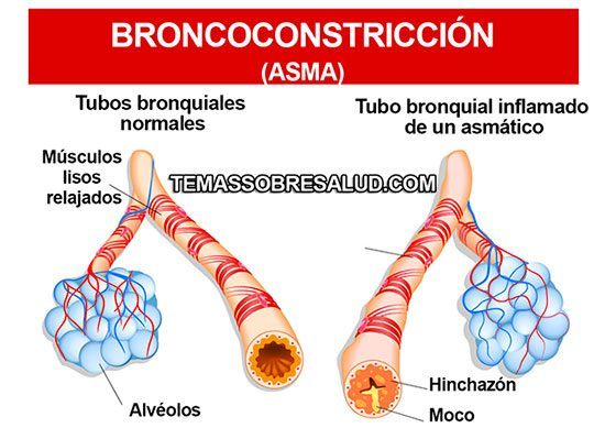 Broncoconstriccion capaz de causar dificultad para respirar