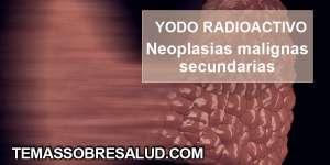aplicación de yodo radioactivo ENFERMEDAD DE LA TIROIDES
