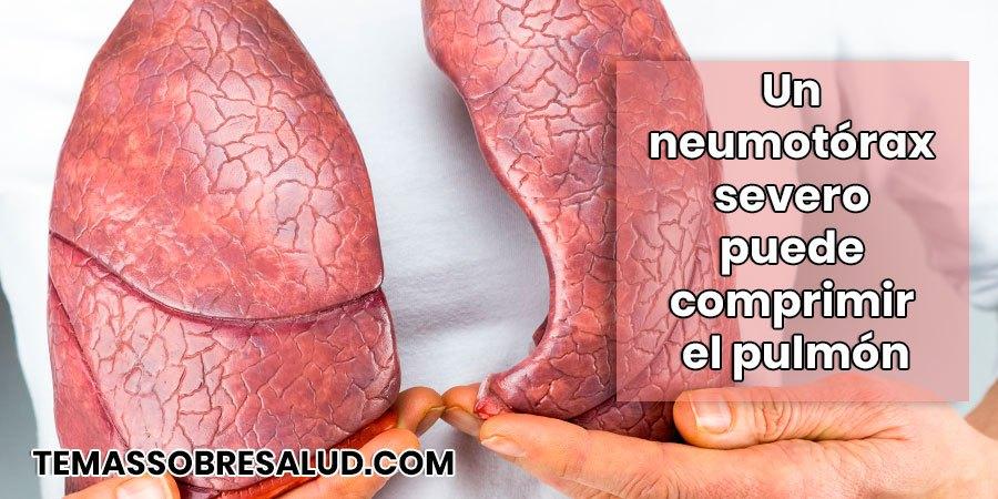 Disnea del sistema respiratorio por neumotorax