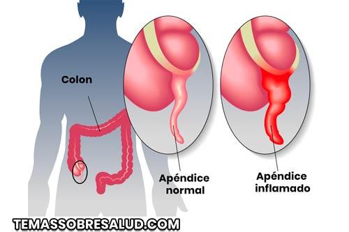 Apéndice - Ubicación, Función y Síntomas de Apendicitis