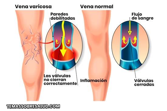 Edema de piernas