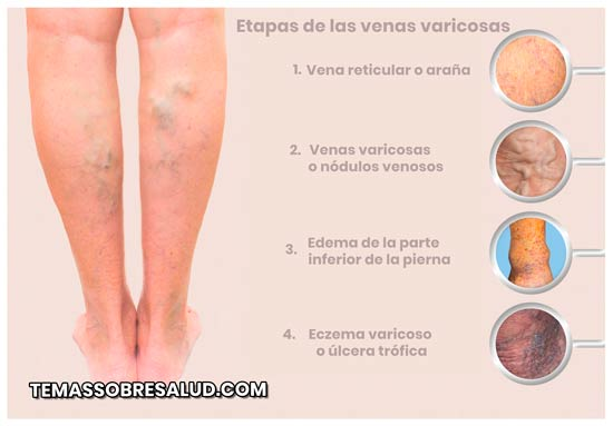 la próstata hace que las piernas se hinchen