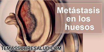 Tumores malignos metástasis
