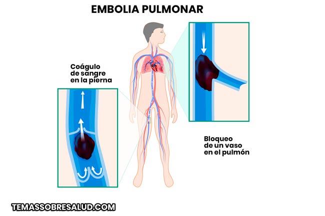 Angiografía pulmonar para el diagnostico de la embolia pulmonar
