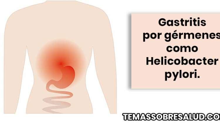 Causas, signos y síntomas de la gastritis