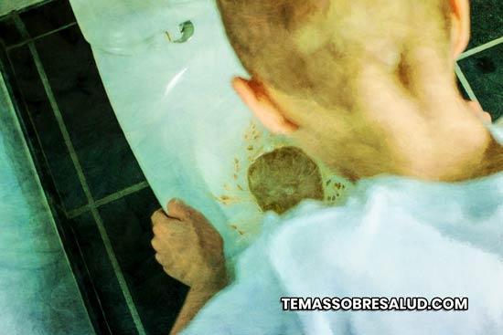 vómito psicógeno: neurosis histérica, anorexia , ataques de vómitos cíclicos en niños