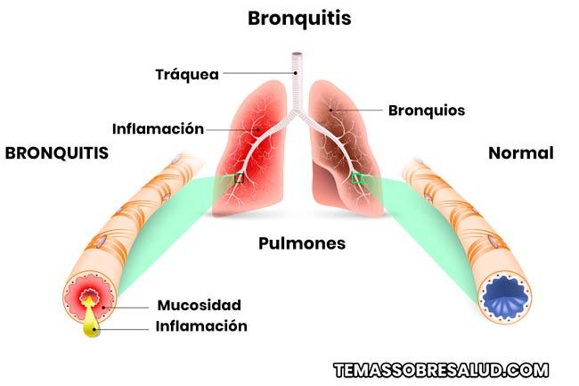 Bronquitis obstructiva en los niños