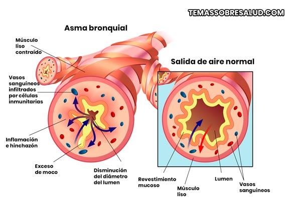Síntomas de la bronquitis obstructiva