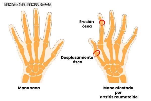 artritis reumatoide una de las tantas enfermedades autoinmunes
