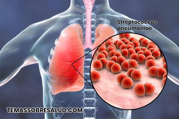Choque séptico por bacterias de infección pulmonar bacteriana que ingresan al torrente sanguíneo.