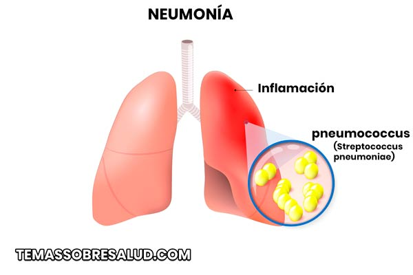 La neumonía bacteriana puede ser causada por tuberculosis o por bacteria Mycoplasma pneumoniae