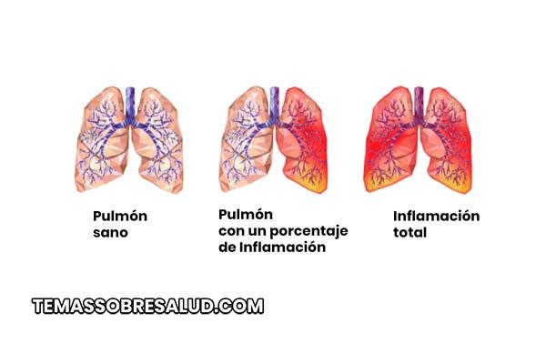 La neumonía, se debe la inflamación pulmonar