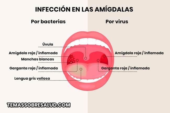 Síntomas de amigdalitis crónica y complicaciones