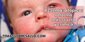 ¿Cuáles son las causas del eczema atópico?