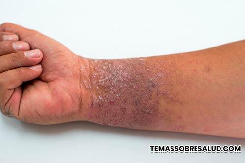 El eczema seborreico a menudo puede parecerse a otras afecciones de la piel, como la psoriasis.