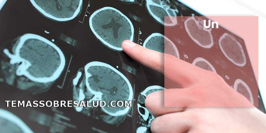 Hematoma epidural – ¡Emergencia médica!