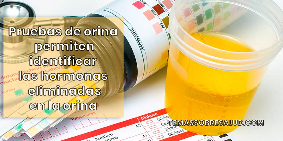 Pruebas hormonales test holandés de orina (Dutch test urine)