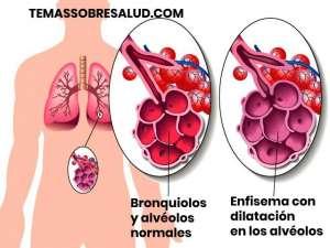Enfisema pulmonar por aumento de la presión en los pulmones
