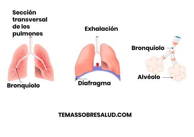 Enfisema pulmonar agudo
