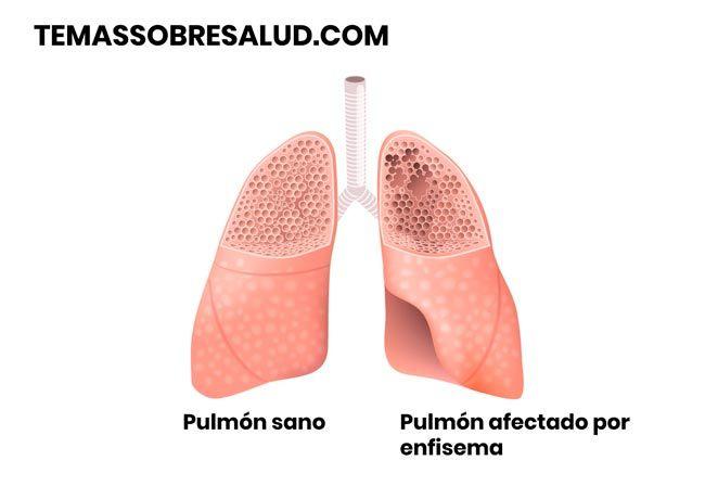 Enfisema pulmonar por alteración de la elasticidad y la fuerza del tejido pulmonar