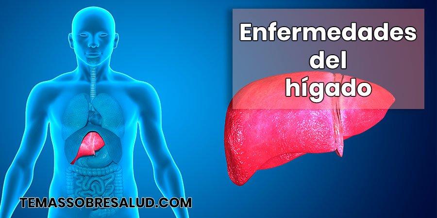 Enfermedades del hígado Sífilis hepática