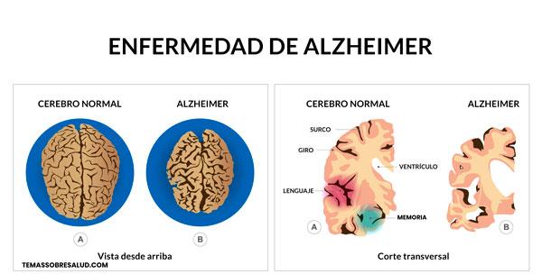 Déficit de cobre Alzheimer