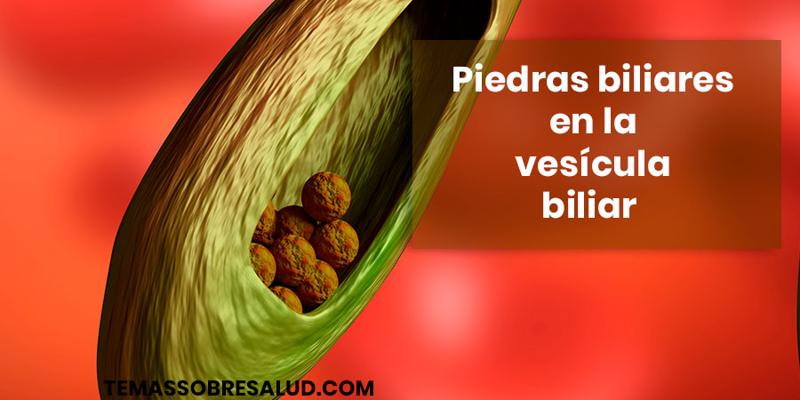 Piedras biliares