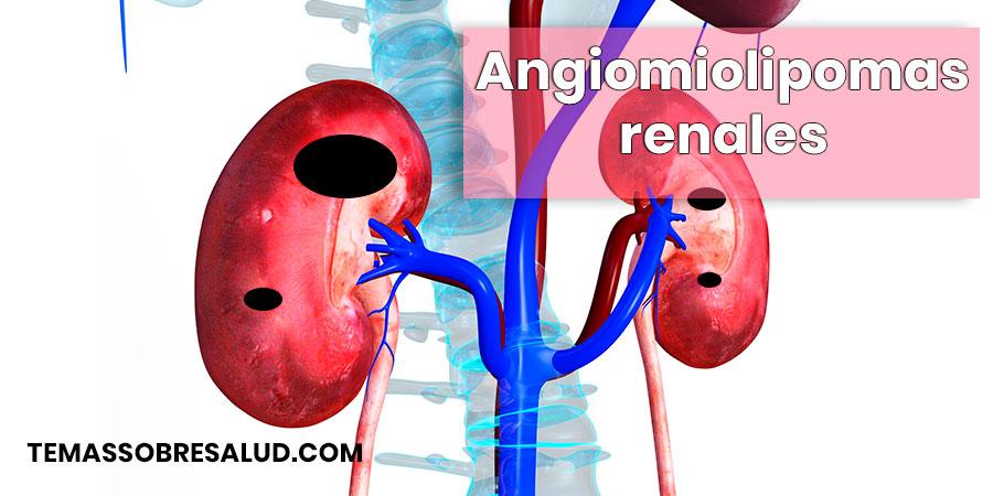 Angiomiolipomas renales