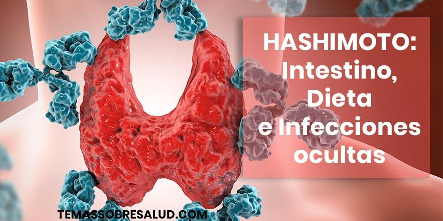 Curar Hashimoto - Infecciones Ocultas