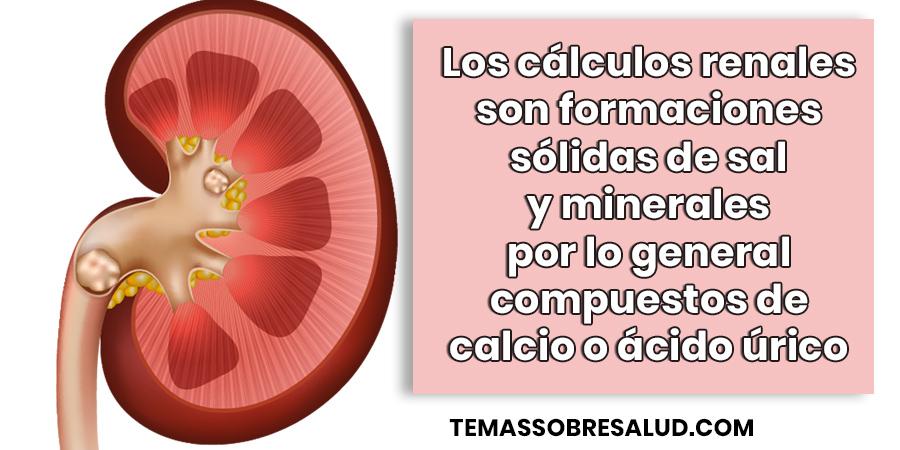 Los cálculos renales de calcio son los más comunes