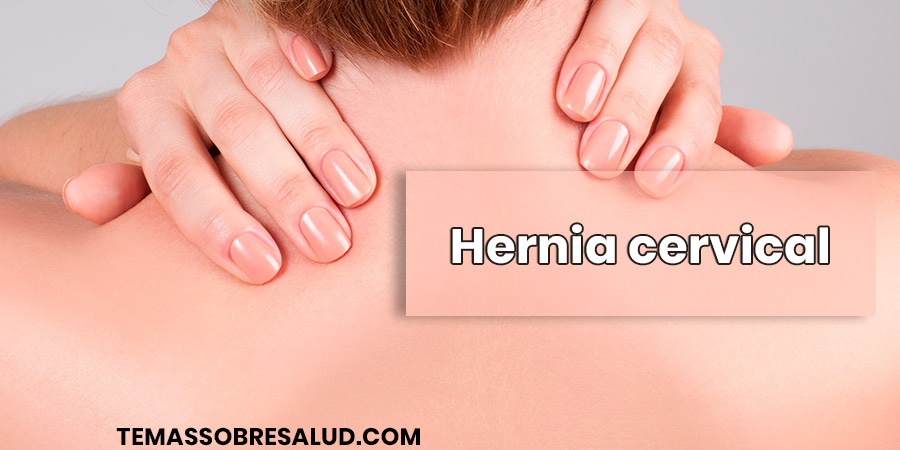 Hernia cervical dolor