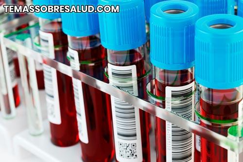 Recuento bajo de linfocitos - linfocitopenia